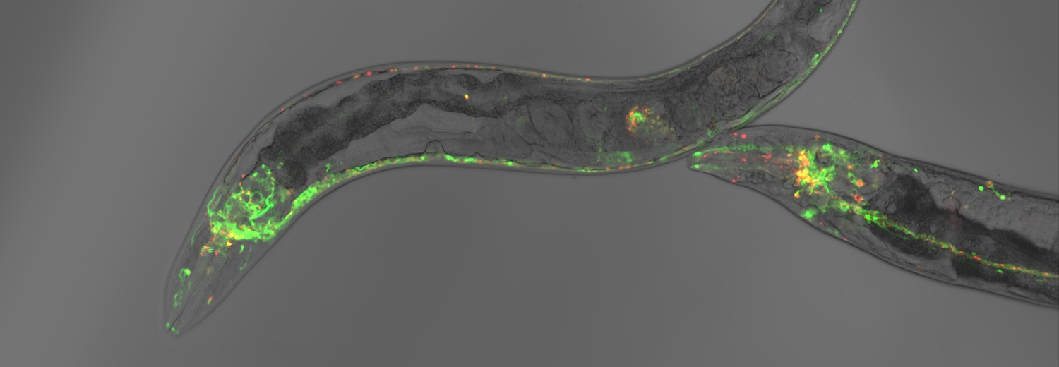 Confocal microscopy of neurons of the nematode C. elegans